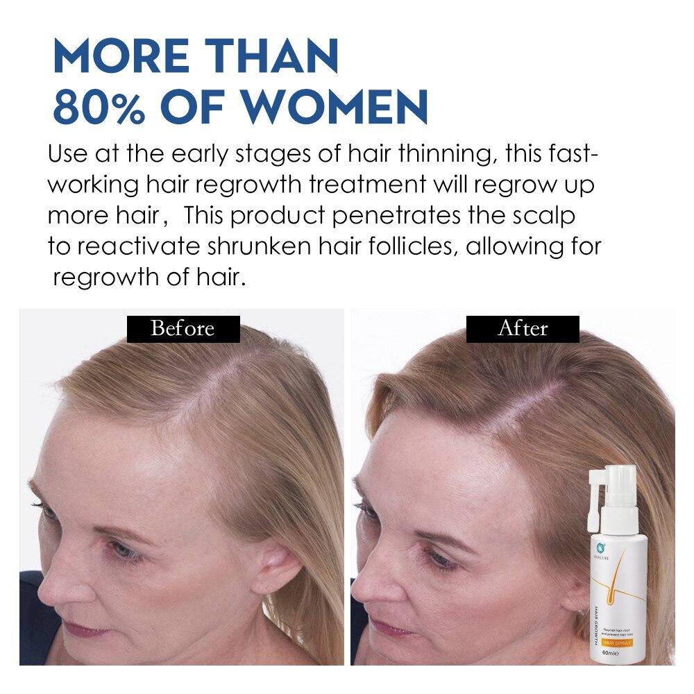 Anti Hair Loss Products Hair Growth Spray Essential Oil Liquid for Men Women Hair Growth Essence Serum Hair Care Repair Growing 2