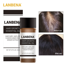LANBENA Fast Hair Growth Essence Plant Extract Treatment Hair Loss Regrowth Essential Oil Women