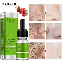10ml MABREM Pomegranate Fine Pores Face Serum Whitening Plant Skin Care Anti Aging Anti Wrinkle Cream Reduce Acne Marks Care