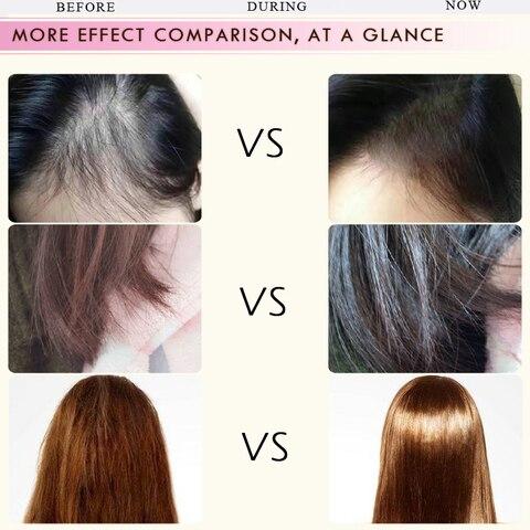RtopR Morocco Herbal Hair Essential Oil Anti Hair Loss Liquid Thick Fast Hair Growth Treatment Essence Oil Hair Care 35ml TSLM1 Multan