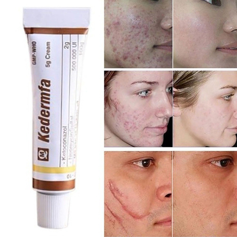 Vietnam Remove Scar Cream Acne