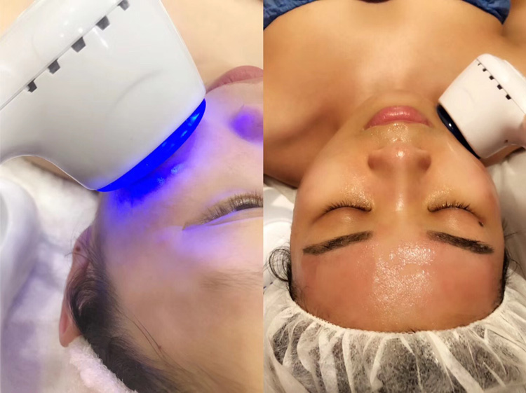Cheap Powered Dispositivos De Limpeza Facial