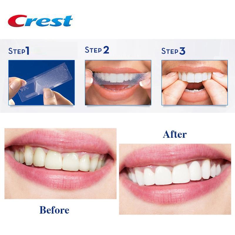 3d White Whitestrips Luxe Professional Effects Oral Hygiene Original Glamorous White Strips Teeth Whitening Strips Dental Whiten Aliexpress