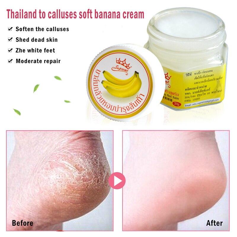 20g Moisturizing Removal Dead Skin Crack Treatment Banana Oil Anti-Drying Soften Heel Cracked Repair Cream Hand Feet Care TSLM2