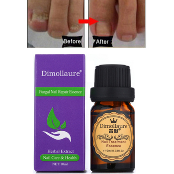 Dimollaure Fungal Nail Treatment Essence Nail Foot Hand Care Toe Nail Anti Fungus Removal Infection Nail Gel Paronychia image