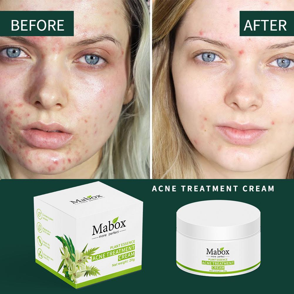 20g Acne Mark Removal Cream Refreshing Pore Cleansing Grease Removal Facial Care Cream Oil Control Shrink Pores For Men AndWomen image