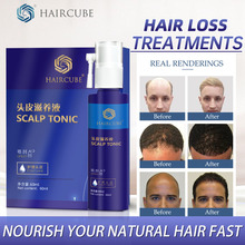 Hair Growth Essence Control Oil Nourishing Hair Help Growth Hair Treatment for Anti hair Loss Sets Natural Herbal Oil Hair Care