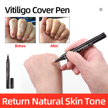 Vitiligo Scars Birthmarks Cover Pen Waterproof Long-lasting Natural White Spots Camouflage Makeup Pen Women Men Body Care Use