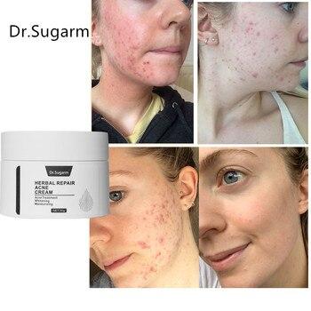 Crema facial para el tratamiento del acné, Gel de reparación de puntos...