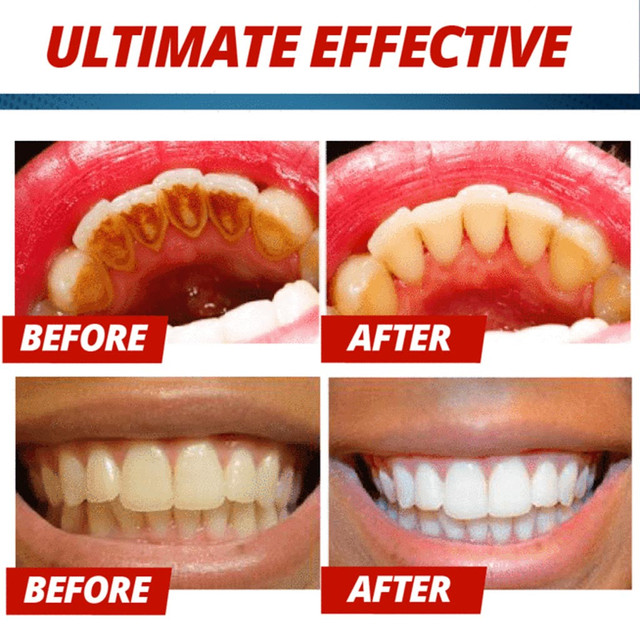 Magical Soda Whitening Toothpaste Teeth Whitening Cleaning Hygiene Oral Care Passion Fruit Fight Bleeding Gums Toothpaste Blue 5