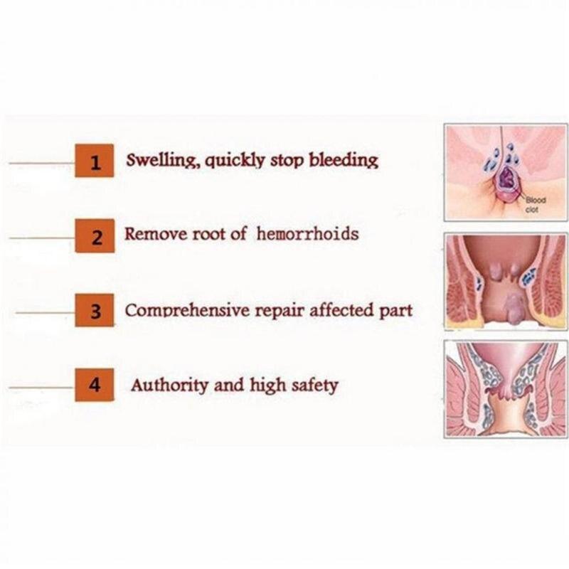 Chinese Herbal Hemorrhoids Relief Cream