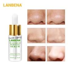 LANBENA Remove Blackhead Face Serum Gentle removal Acne Treatment Shrink Pore Deep Pore Acne Pimple Purifying Skin Care 15ml