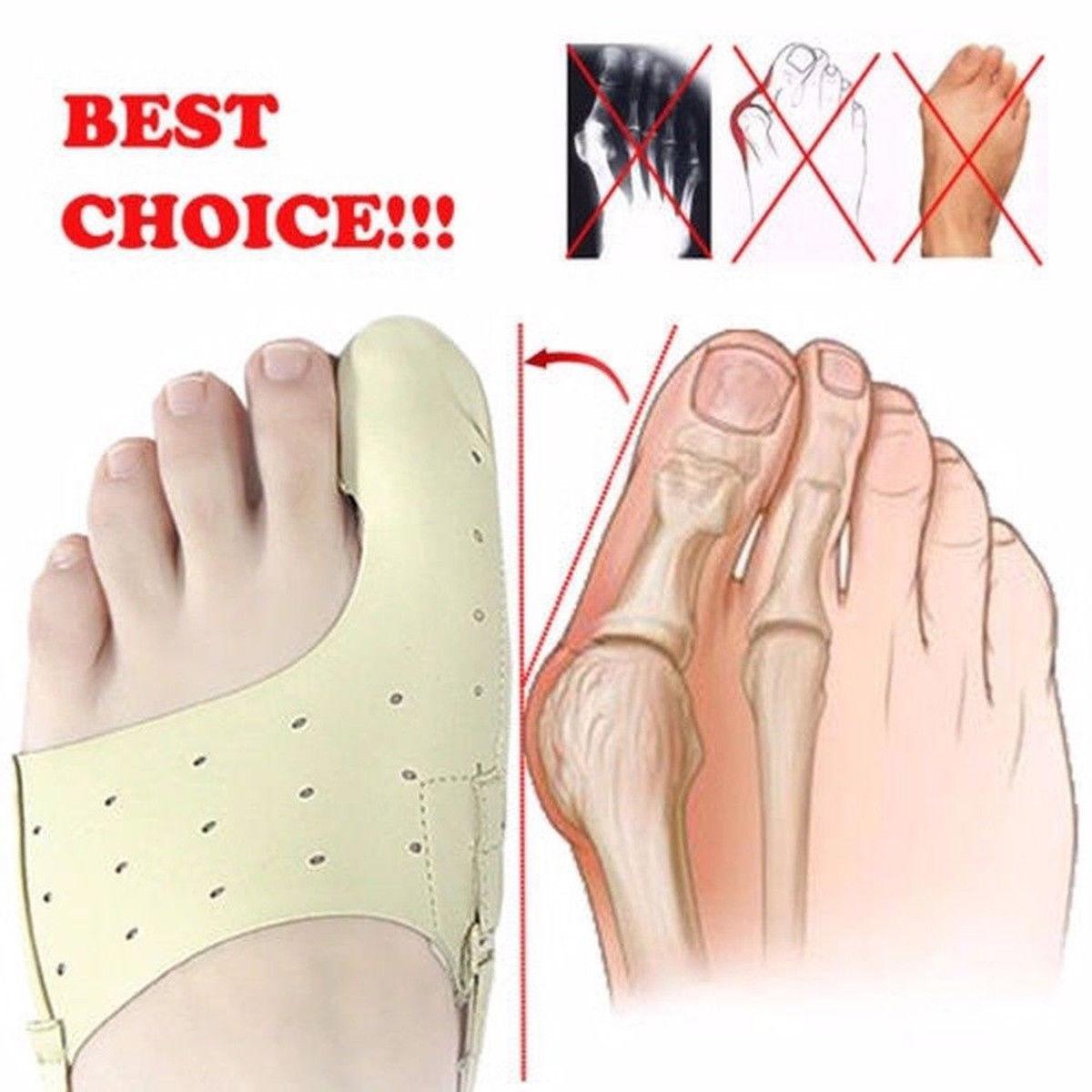 2020 эластичный корректор шишки на большом пальце цельнокроеное платье инструмент для ухода за ногами на широкую ногу кости разделитель для ...