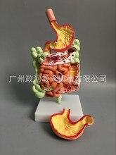 ヒトの消化器系モデル胃解剖大腸 cecum 直腸指腸人間の内臓構造生物学モデル