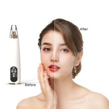 цена на Vacuum Suction Blackhead Remover Nose Facial Pore Spot Cleaner Acne Black Head Pimple Remover Beauty instrument Skin Care Tool