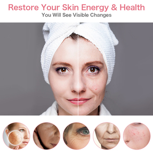 Image 5 - 5 in 1 Skin Tightening Beauty RF Radio Frequency Skin Rejuvenation Device Face Lifting Anti Aging Wrinkles LED Photon Skin Care