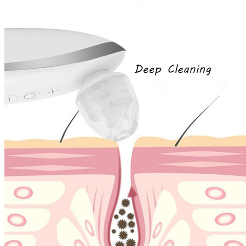 de extrusao para remover pontos pretos limpeza
