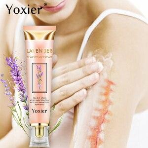 Yoxier Repair Scar Cream Acne Scar Stretch Marks Skin Care Pigmentation Corrector Anti-allergic Calm Whitening Face Cream 1pcs