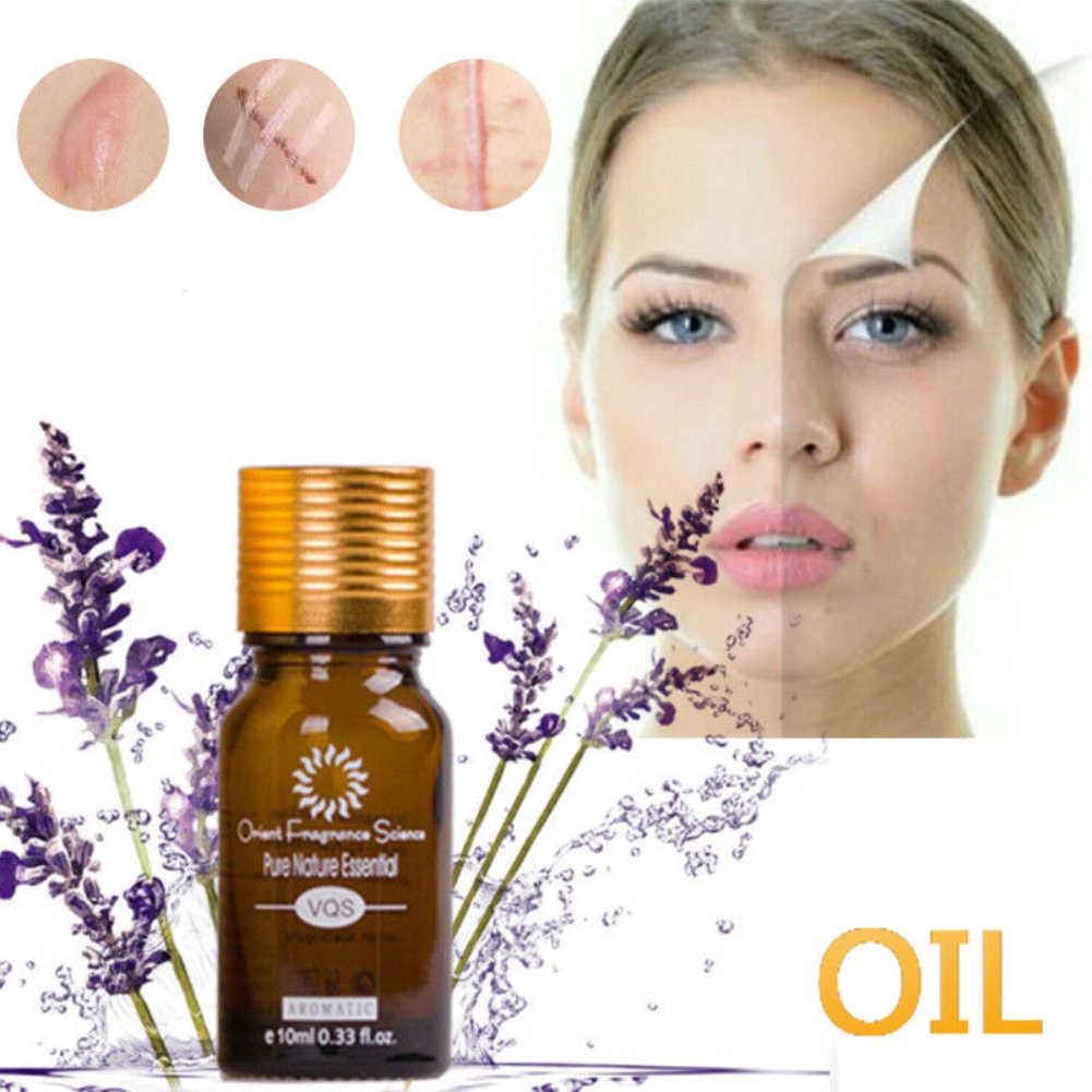 1 本 100% 天然超白エッセンシャルオイル瘢痕除去保湿清潔肌白油スキンケア TSLM1