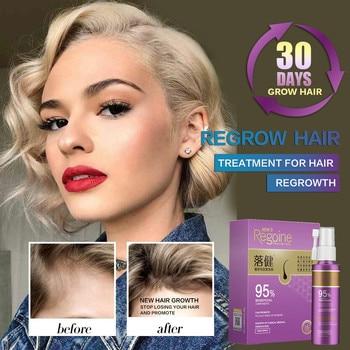 Hair Growth Essence Oil Spray Fast Hair Growth Natural Anti Hair Loss Treatment Hair Solution Hair Care Products Hair Tonic 1