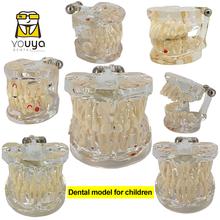 Modelo dental para crianças dentes permanentes de dente decíduo alternando estudo teasthing pediatra patologia dental modelo preventivo