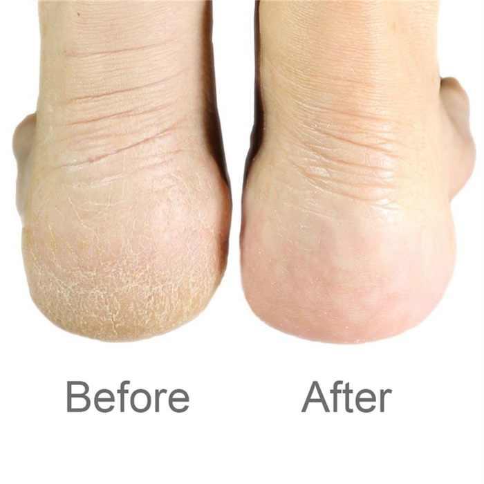 สแตนเลสสตีล Double-sided เท้า Rasp ส้นแฟ้ม Remover Hard Dead Skin Scrubber สีดำแฟ้มเท้าส้นเท้าเครื่องขูดสำหรับ the ฟุต