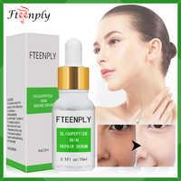 Fteenply oligopeptides soro reparação facial anti-envelhecimento ácido hialurônico anti-rugas hidratante essência acne tratamento cuidados com a pele