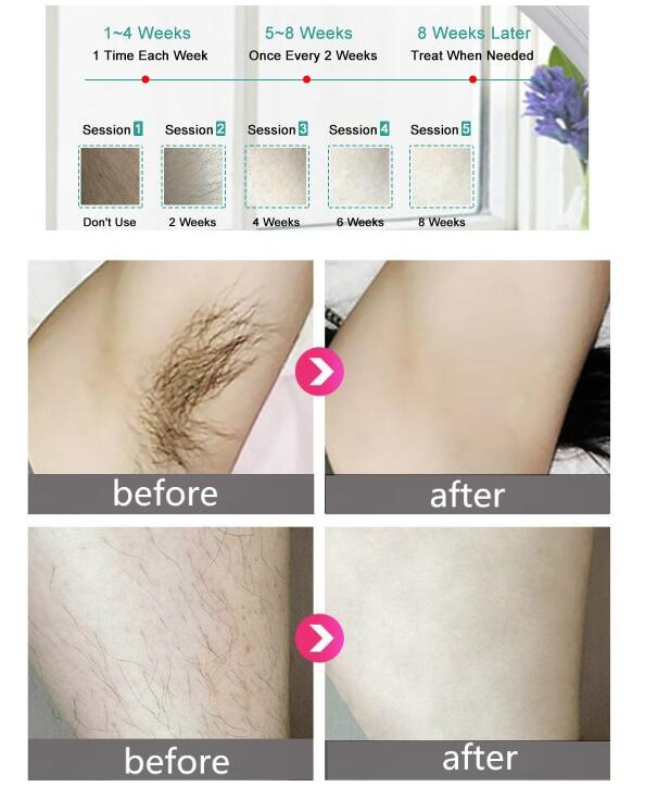 Before & After use | Technologies Best
