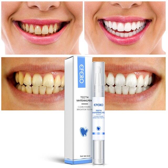 EFERO Sbiancamento Dei Denti Penna di Pulizia Siero Rimuovere La Placca Macchie Dentale Strumenti di Bianco Dei Denti Igiene Orale Sbiancamento Dei Denti Penna Dentes 6