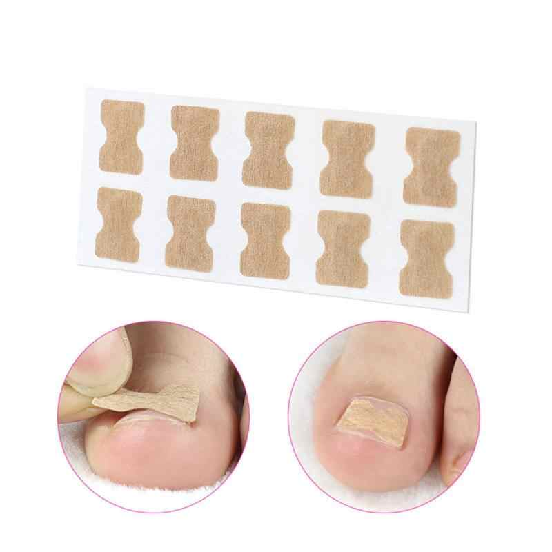 1/5Pcs Nail Strips Anti-Roll Nail Gratis Lijm Teen Inlay Nail Corrector Nail Patch Correctie Stickers teennagels Nail Care Voetverzorging