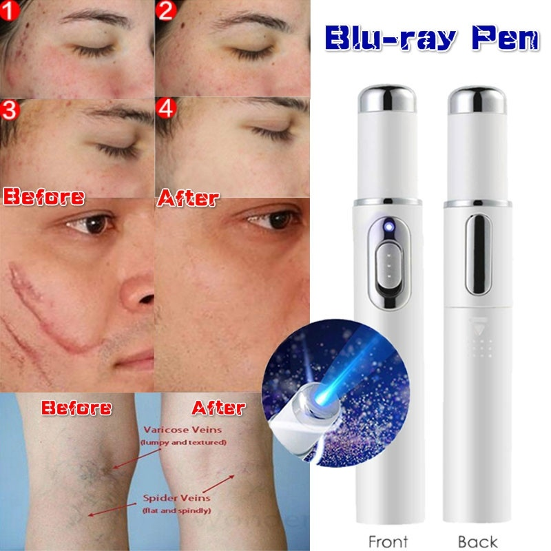 Portable Medical Blue Light Therapy Acne Laser Pen Skin Spots Removal Pen Anti Varicose Spider Vein Eraser Treatment