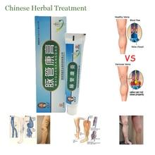 1 коробочка, Китайская натуральная травяная медицина для лечения варикозного расширения, сосудистых воздействий, массажный крем для лечения варикозного расширения вен, мазь