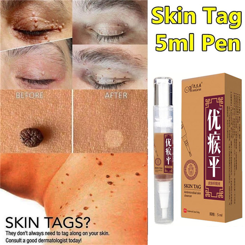Skin Tag Remover Medical Kill Remover Skin Tag Mole & Genital Wart Remover Foot Corn Foot Patch  Removal Tool 5ml Skin Care