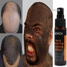 Эссенция для роста волос Sevich, спрей для лечения выпадения волос, спрей для предотвращения выпадения волос, эссенция для роста волос, уход за ...