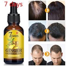7 дней роста волос имбиря Сыворотки масло для ухода за волосами роста волос жирных следов и предотвращая их потерять жидкий уход для поврежд...