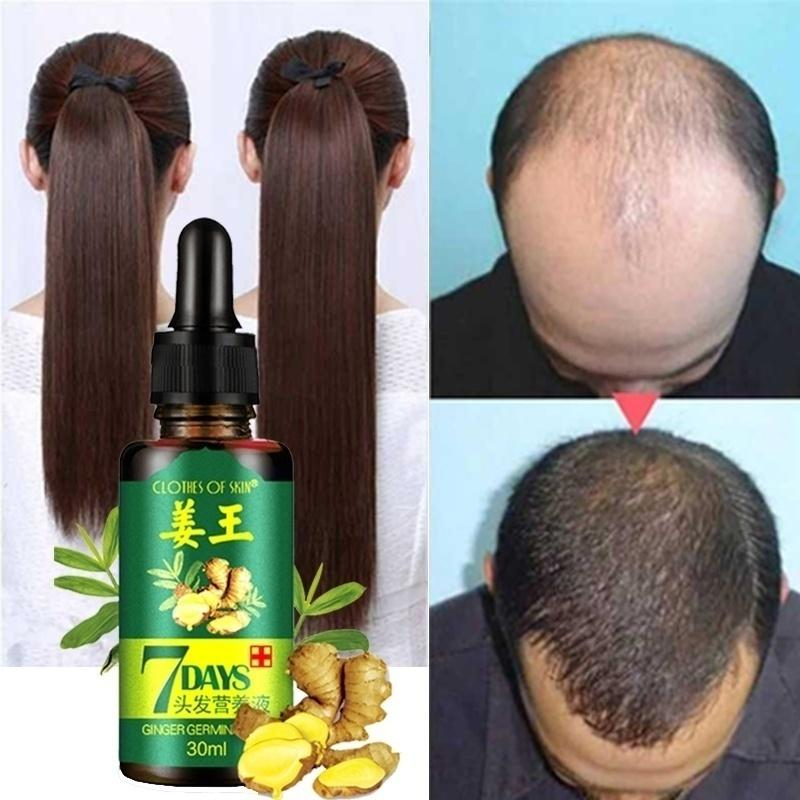 Hair Growth Essence Liquid Fast Hair Growth Natural Hair Loss Treatment Ginger Hair Growth Liquid
