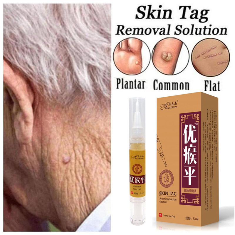 Skin Tag Remover Pen 12 Hours Tu Kill Remover Medical Skin Tag Mole Wart Remover Foot Corn Verruca Wart Remover Liquid Skin Care