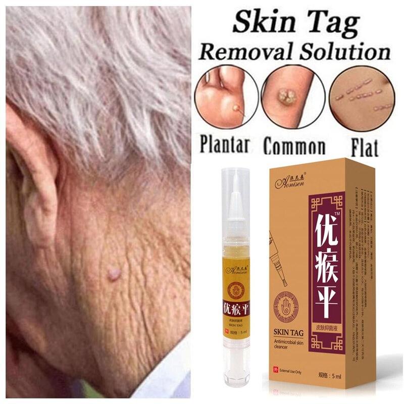 Skin Tag Remover Pen 12 Hours Tu Kill Remover Medical Skin Tag Mole Wart Remover Foot Corn Verruca Wart Remover Liquid Skin Care