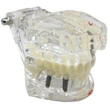 2pcs Dental Model teeth implant Restoration Bridge Teaching Study Tooth Medical Science Disease Study Dentist Dentistry products dental lower jaw implant practice model with soft gum dentist for medical dental education practice teaching study 7 3 6 3 3cm