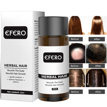 Efero 20ml rápido poderoso crescimento do cabelo produtos de perda de cabelo óleo essencial crescer restauração soro cuidados com o cabelo