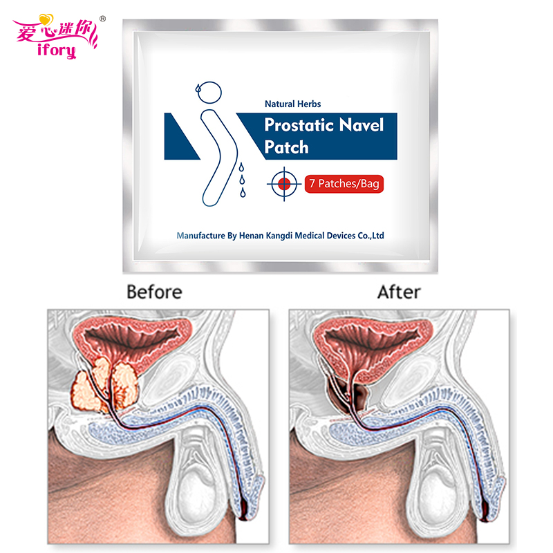 Ifory Health Man Prostatic Navel Patch 35Pcs/5bags Natural Herbs Plaster Prostatitis Prostate Treatment Patches Urologic Patch