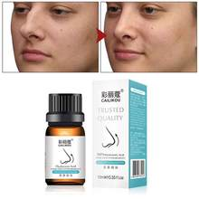 Nariz para cima aumentar os óleos essenciais da rinoplastia osso nasal remodelação natural puro cuidado do nariz fino menor óleo do nariz realmente eficaz