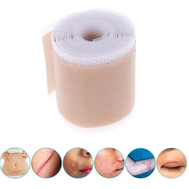 Removedor de cicatriz eficiente, 4x150cm silicone folha de terapia remoção de cicatriz patch para trauma de acne queimar cicatriz reparação da pele tratamento de cicatriz