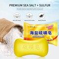 Schwefel Seife Öl-Kontrolle Akne Behandlung Lackhead Entferner Seife Bleaching Sauber Pilz Seife Chinesischen Traditionellen Hautpflege TSLM1