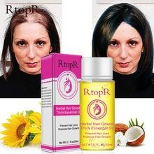 Óleo essencial para perda de cabelo, essência poderosa rápida para crescimento do cabelo, tratamento líquido para prevenção da perda de cabelo, cuidados com o cabelo 20ml tslm2