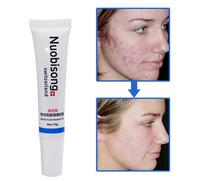 Nuobisong face care acne removal cream Acne Spots skin care treatment whitening face cream stretch marks moisturizing 5PCS