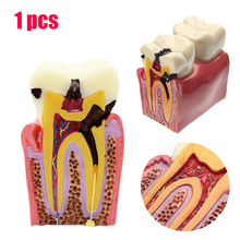 1pcs Caries Teeth Model 6 Times Caries Comparation Study Models Tooth Decay Model Denture Teeth Model For Dental Study Teaching dental premature disease teeth model transparent caries pathological demonstration tooth child study teaching showing 2018