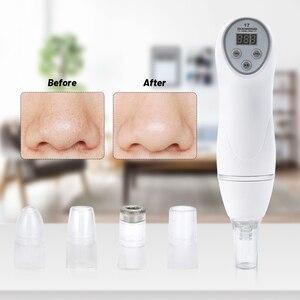 Image 3 - Diamond 17 Potable Microdermabrasion Diamond Peeling Device Blackhead Removal Skin Peel Diamond Dermabrasion Facial Massage