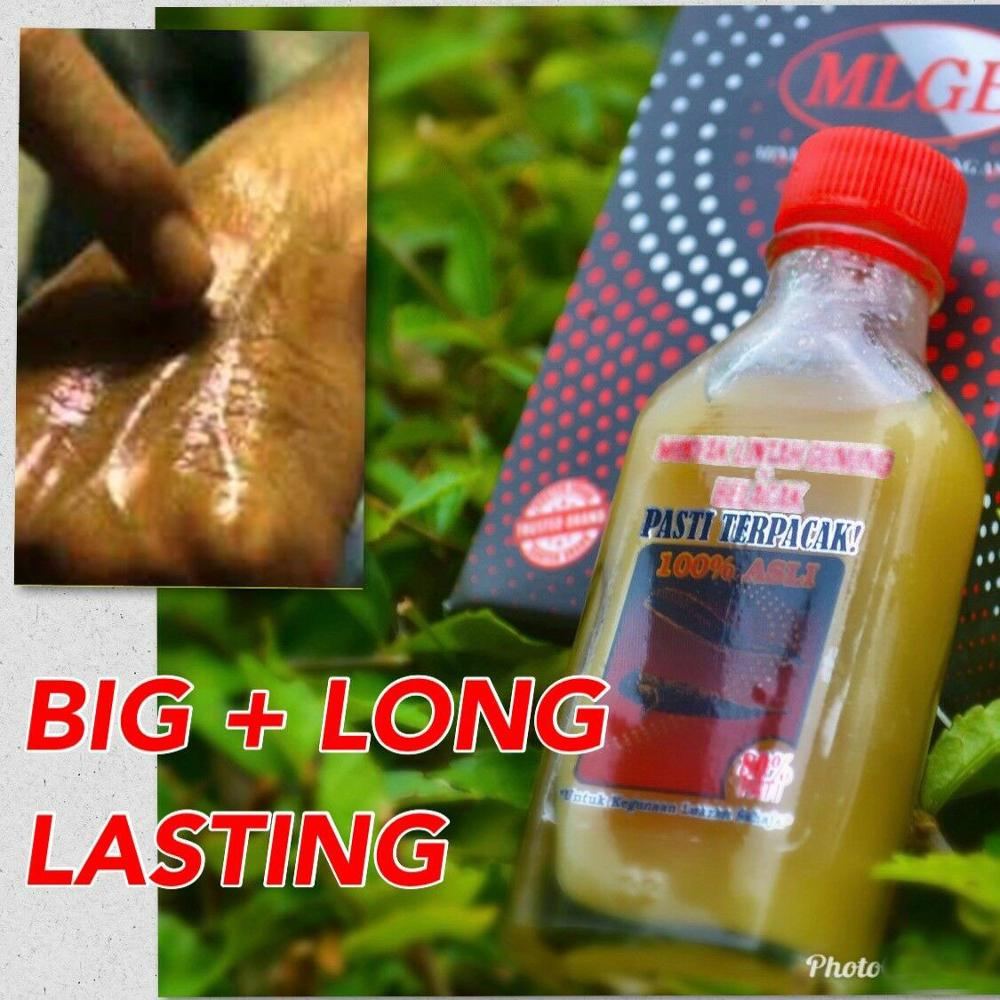 Details About100% Original Extract Mountain Leech Oil Mudskipper For BIG+STRONG+ Long Lasting