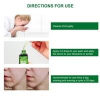 Acne Treatment Serum Facial Serum Anti Acne Scar Removal Cream Whitening Effectively Treat Repair Pimples Skin Care TSLM1 5